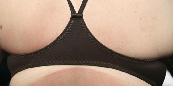 17 Ways to make a sunburn go away ASAP