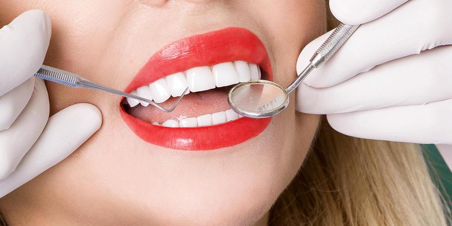 Veneers 101: How To Get That Hollywood Smile
