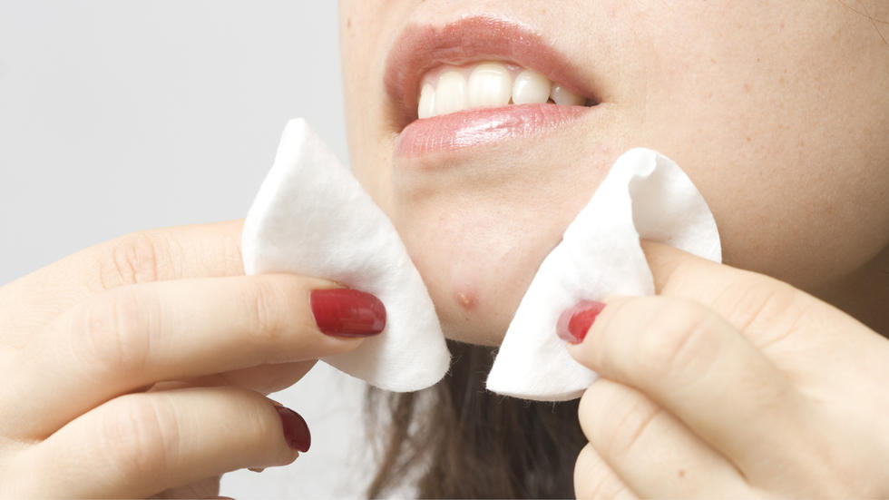 9 Simple Habits To Keep Pimples Away Forever