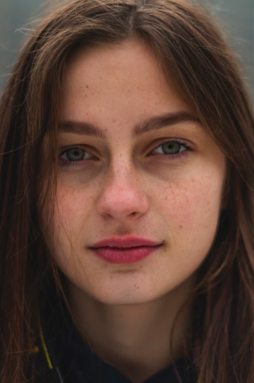 How to Get Rid of Acne Scars and Dark Spots ASAP